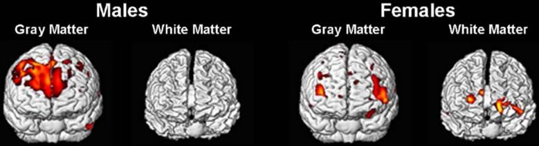 Front view of grey and white matter activation during IQ test. (Haier et  al. 2005)